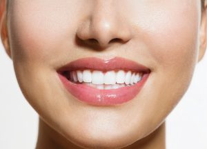 How A Dental Bridge Can Help Maintain Your Smile